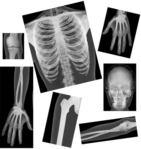 Biology Life Science True To Life Human X Rays