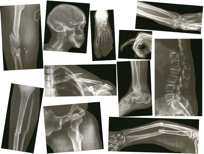 image relating to Printable X Rays named How In direction of System Your Kid For An X-Ray Bay Imaging Consultants